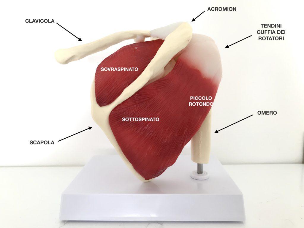 lesione cuffia dei rotatori, tendinopatia, tendinopatia calcifica, lesione sovraspinato, sindrome sottoscapolare