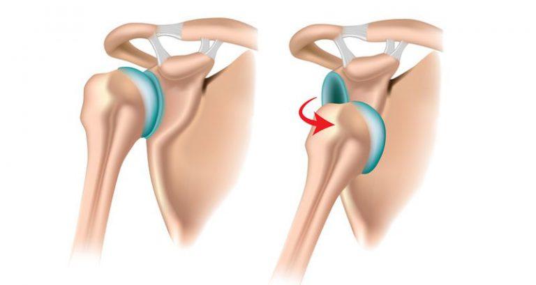 riabilitazione lussazione spalla, spalla instabile, lussazione recidivante