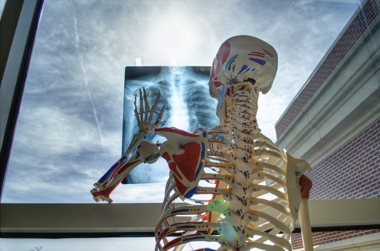 esami, radiografia, tac, rx, eco, ecografia, risonanza magnetica vimercate, monza e brianza